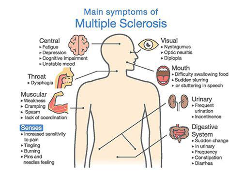 multiple_sclerosis_symptoms_500W_AdobeStock_181735729-[Converted]-copy-compressor